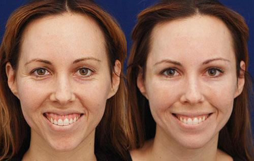 how to make smile less gummy